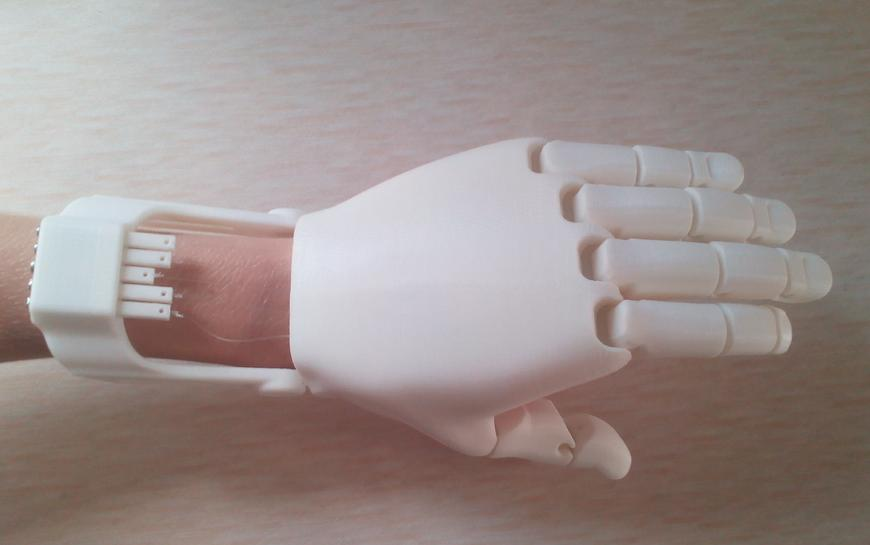 The-Flexy-Hand-The-Most-Innovative-Useful-Realistic-Looking-3D-Printed-Prosthetic-Hand-Yet-2