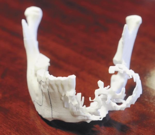 Two-South-Africa's-cancer-patients-get-3D-printed-jaw-implants